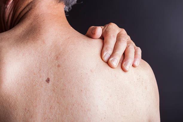 una persona con dolore alla spalla