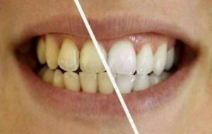 risultati ed effetti denta black