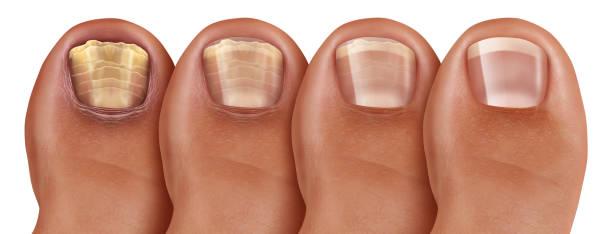piede, unghia, fungo, infezione fungina