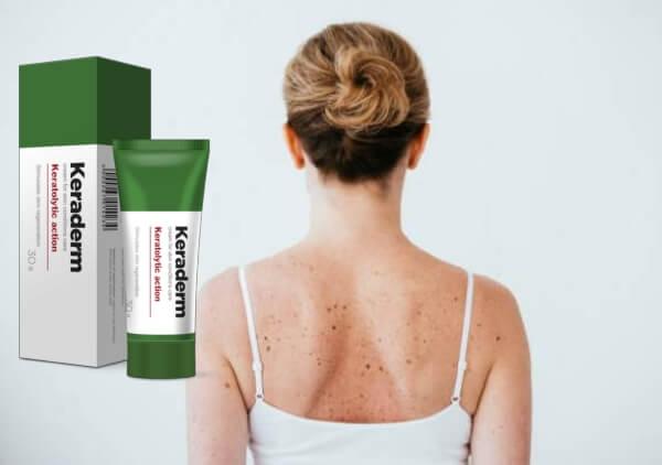 Revisión de KeraDerm - ¡Cuidado diario para una piel perfecta!