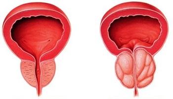 próstata agrandada normal